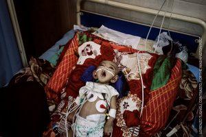 Yemen Crisis Lorenzo Tugnoli, Italy © Contrasto for The Washington Post